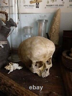 Crâne humain hydrocéphale, human skull, curiosité, curiosity, replica, anomalie