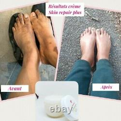 Crème correctrice éclaircissante d'hyperpigmentation pour mains, pieds